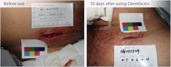 Bioactive Glass Material for Wound Healing_UEG Medical Group Ltd
